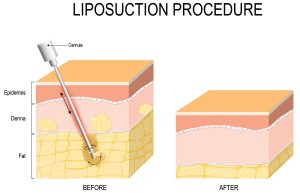 Liposuction Procedure
