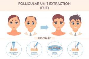 FUE Hair Treatment